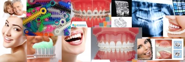 Clínica dental - Clinicias de Ortodoncia klident