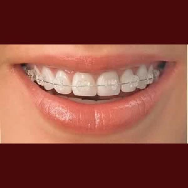 Ortodoncistas - En Clínicas de Ortodoncia Klident www.klident.com